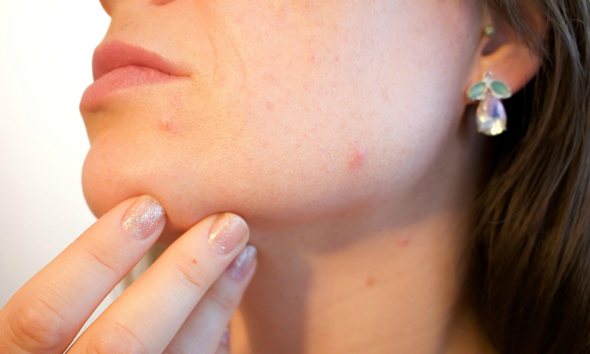 Vegan Acne and Diet